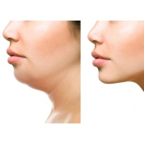 Aesthetic Angulation Package - Jawline and Chin Augmentation £479 (Save £119)